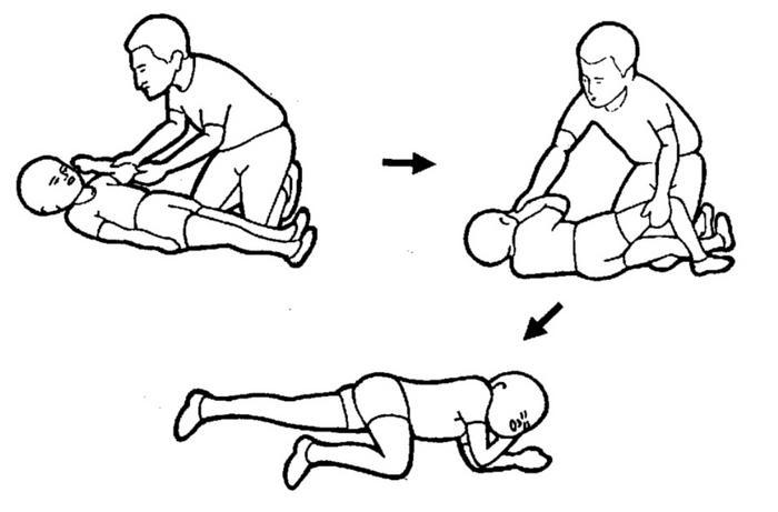 convulsiones febriles - Convulsiones febriles en niños