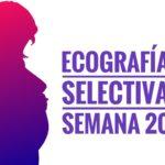 ecografia selectiva . semana 20 1 150x150 - Ecografía selectiva. Semana 20